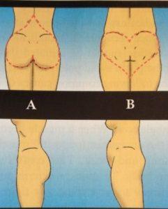 Corazón en el trasero (Heart Bottom Syndrome)
