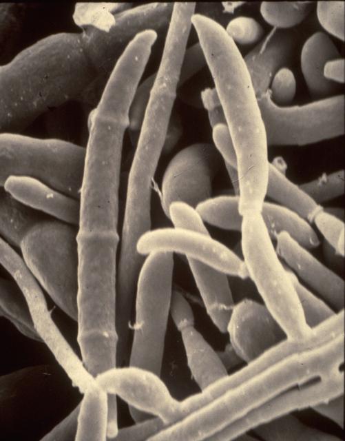 Infertilidad y hongos