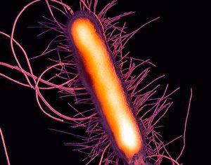 Proteus mirabilis (Reina de las infecciones)