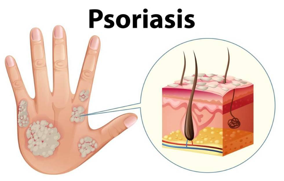 ¿Es la psoriasis un problema común?