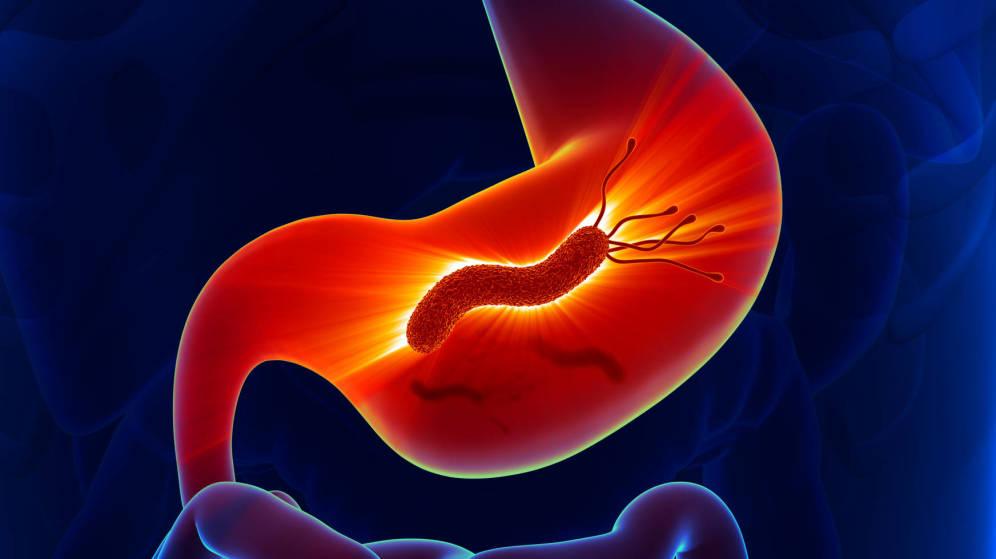 helicobacter pylori todos los tratamientos disponibles